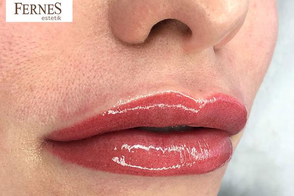 fernes-estetik-dudak-renklendirme-surec-4